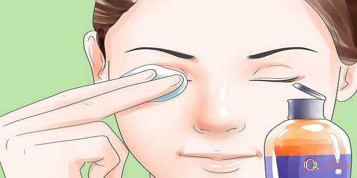 درمان گودی زیر چشم