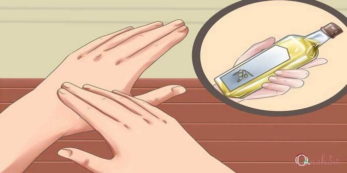 درمان خانگی نیش پشه