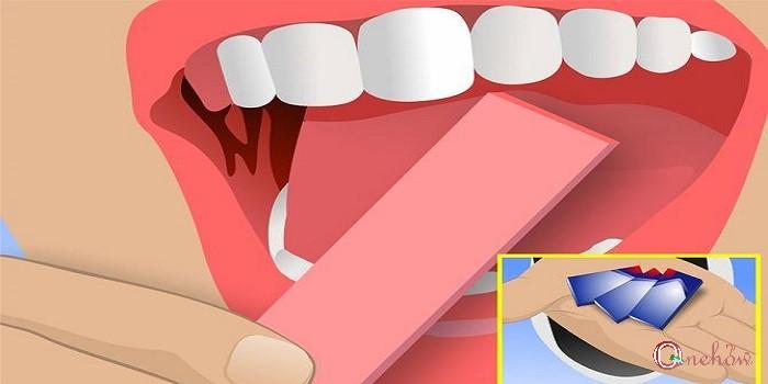 چگونه بوی بد دهان را درمان کنیم